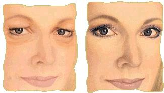 Cirugía de parpados - Antes y despues