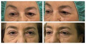 cirugía de párpados antes y después