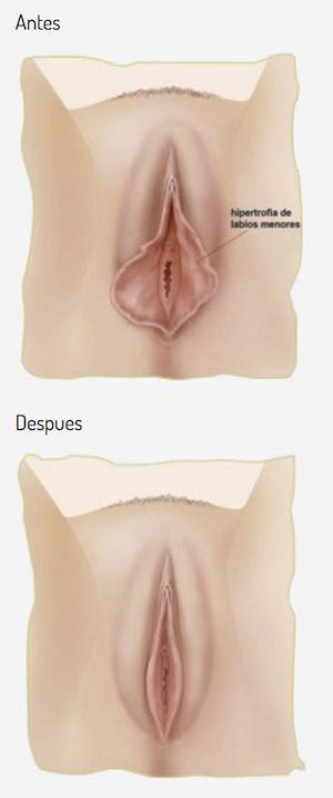 Cirugía intima un tratamiento en alza