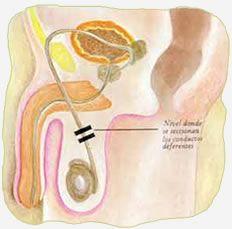 Vasectomía: Tiene una efectividad del 100%