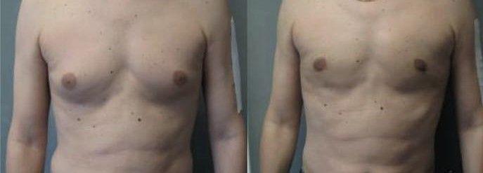 ginecomastia antes y despues Clinica Belladona Ginecomastia