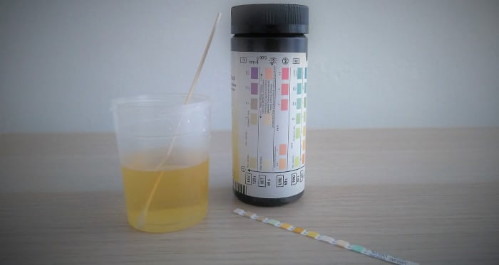 infecciones mov Infecciones urinarias