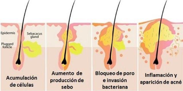 tratamiento acne peeling Belladona